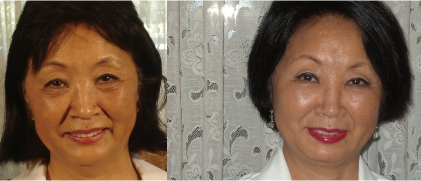 LifeCell cream before and after