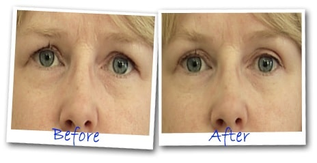before_after_eye_secrets_upper_eyelid_lift