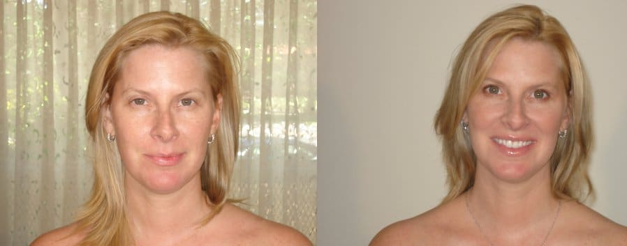 Coleen, 41 year old (before and after)