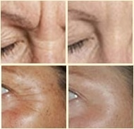 before_after_revitol