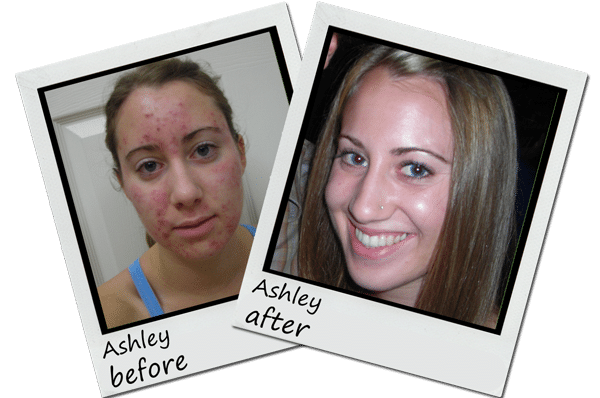before_after_Exposed_Skin_Care_ashley