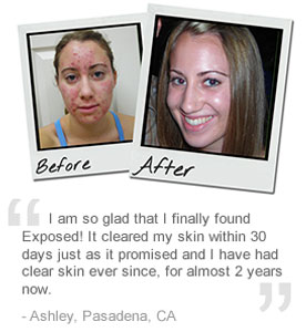 before_and_after_exposed_skin_care