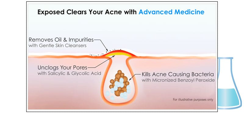 how_acne_works