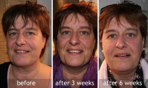 before_after_facelift_gym