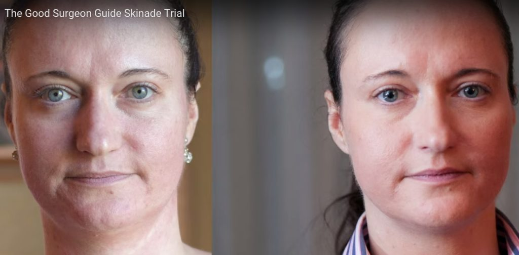 before_after_skinade_2