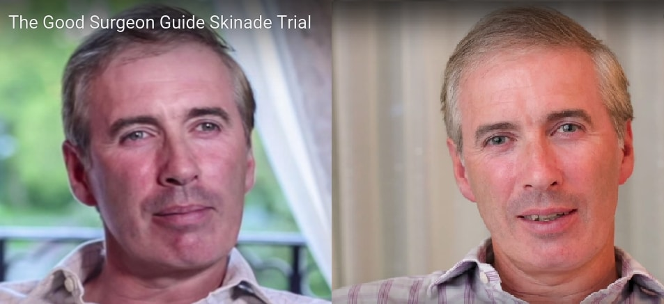 before_after_skinade_man