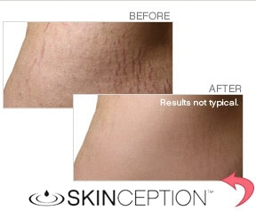 skinception-before-after