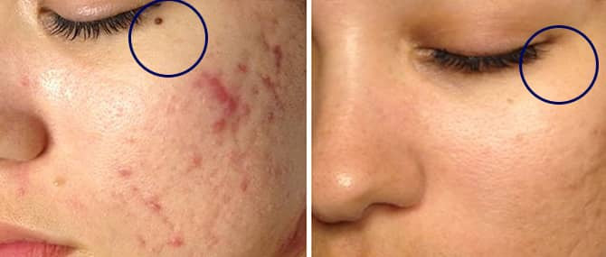 mole_Nevi_SKin_before_after