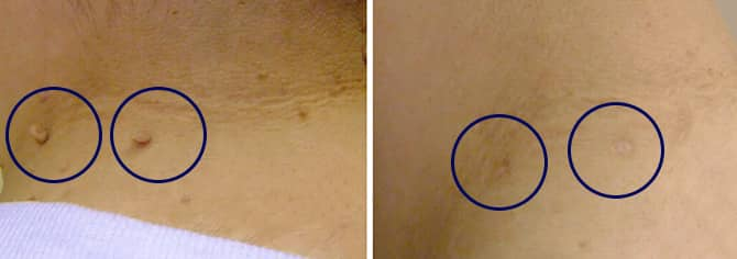skintag_before_after_NeviSkin