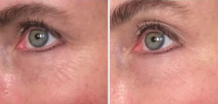 before_after_instant_wrinkle_reducer
