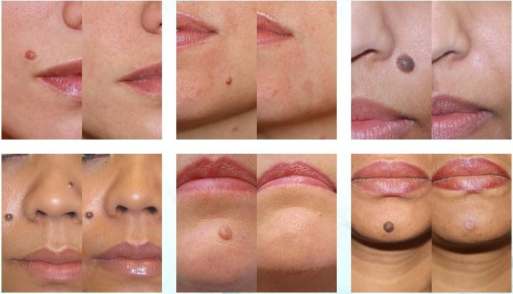 before-after-skinpro-tag-mole-corrector