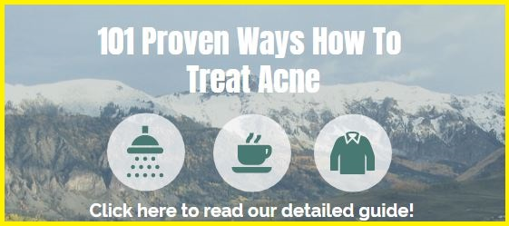 101-treat-acne-tips