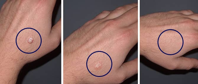Nevi_Skin_before_after_wart1