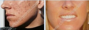 clear_pores_before_after_Jennifer