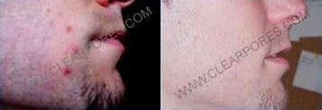clearpores_before_after_max