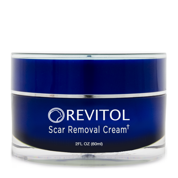 Revitol Scar removal cream reviews