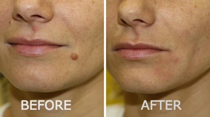 lucent skin skin tag remover before after revitol