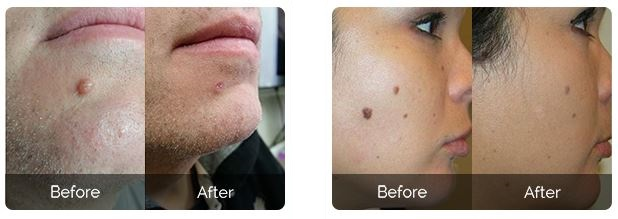 before-after-skincell-pro