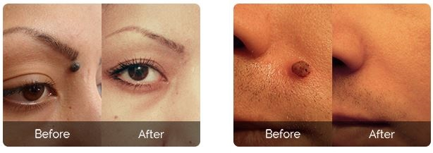 skincell-pro-before-after