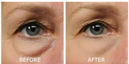 Revitol eye cream before after