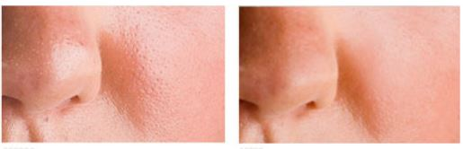 before after revitol pore minimizer
