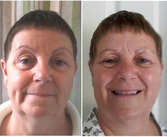 before_after_jean_annmariegianni_anti_aging_oil